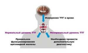 Анализ ТТГ в Инвитро