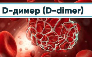 Сдача анализа на Д-димер в Инвитро